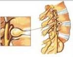 Остеохондроз и межпозвоночная грыжа