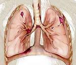 пневмосклероз легких