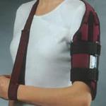 Перелом руки (плеча)
