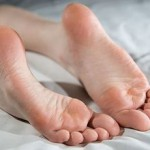 Как лечить натоптыши