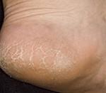 Народное лечение трещин на пятках