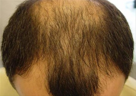 Средство от седых волос для мужчин. Лечение и профилактика