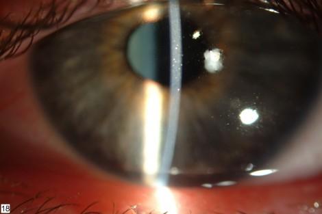 Геморрагическая макулодистрофия глаза