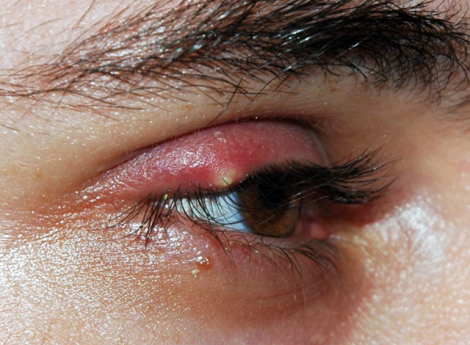 Ячмень на глазу как лечить?